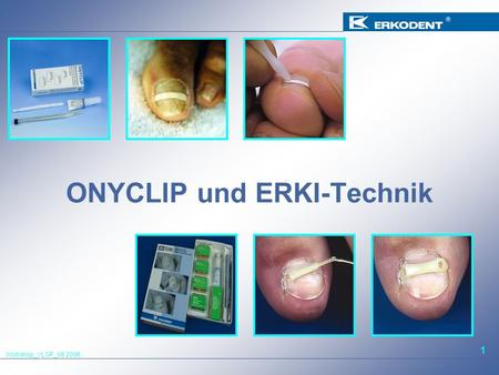 Workshop_VLOF_08.2006 1 ONYCLIP und ERKI-Technik.