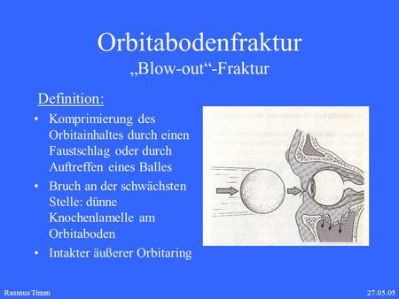 "Orbitabodenfraktur ""Blow-out""-Fraktur"