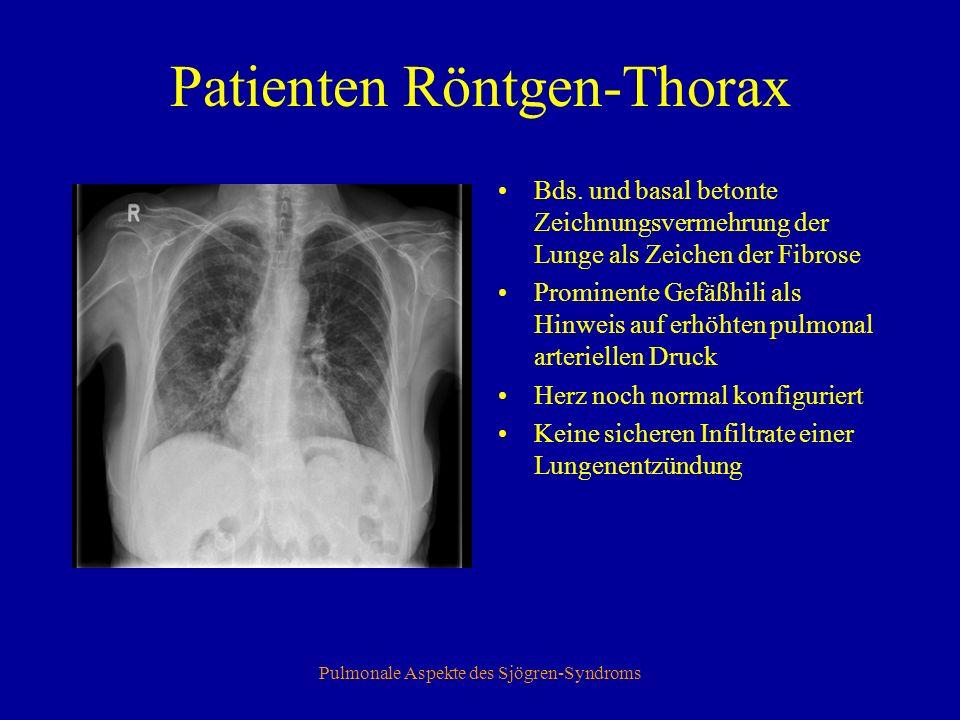 Pulmonale Aspekte des Sjögren-Syndroms Thorax-CT Links ein Normalbefund mit Kontrastmittel.