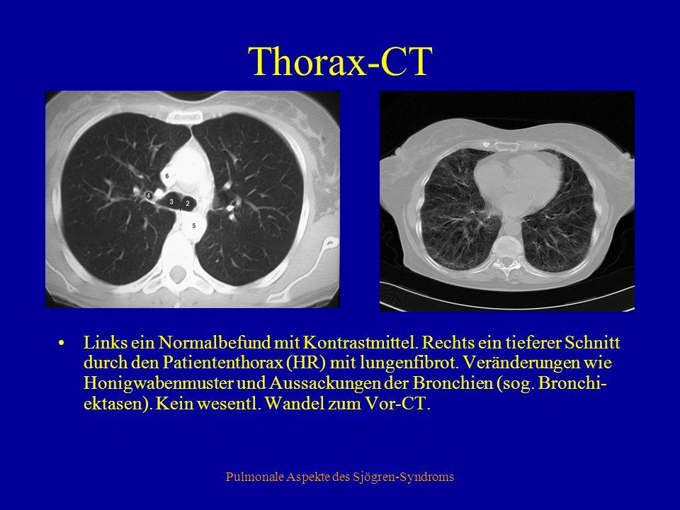 Pulmonale Aspekte des Sjögren-Syndroms Echocardiographie Zeichen der Rechtsherzbelastung Mittelgradig erhöhter Pulmonal Arterieller Druck (PAP) von 32 mmHg +ZVD