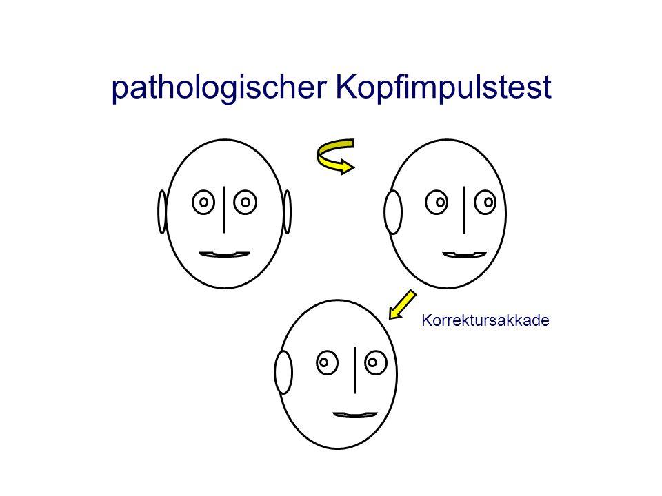pathologischer Kopf-Impuls-Test wegen Patienten-Datenschutz kein Video