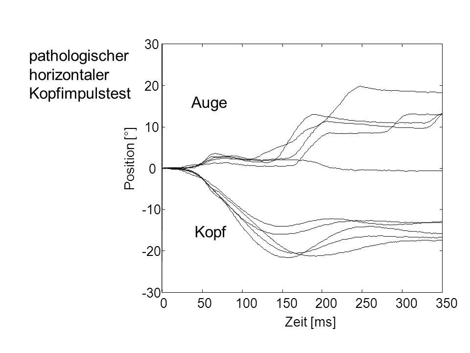 Kopf-Impuls-Test pathologischnormal peripher-vestibuläre Unterfunktion...