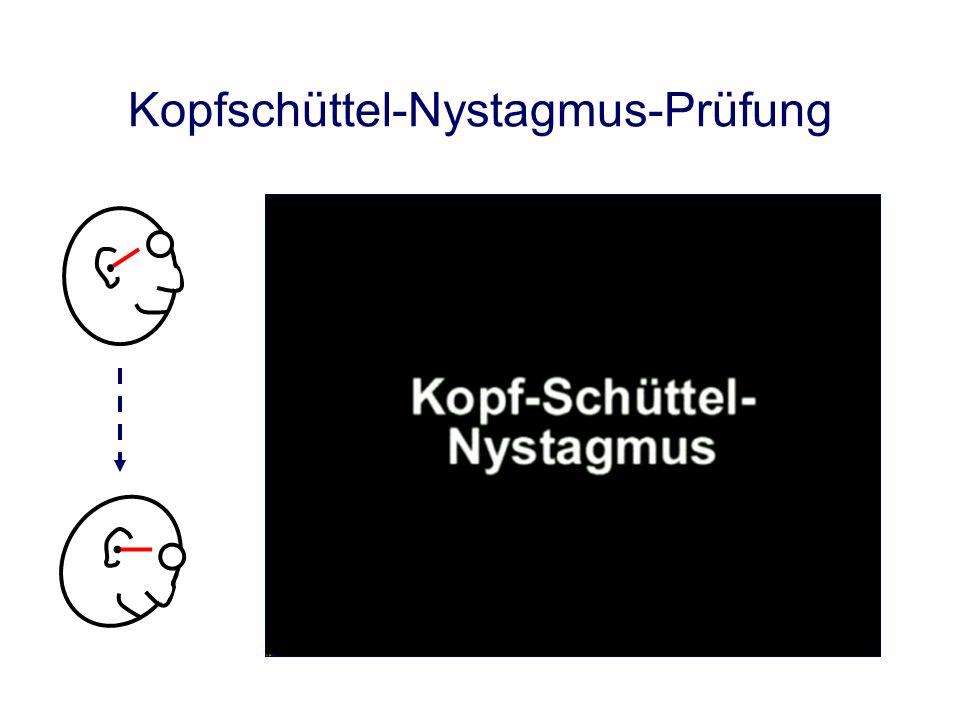 Kopfschüttel-Nystagmus Courtesy A. Schade