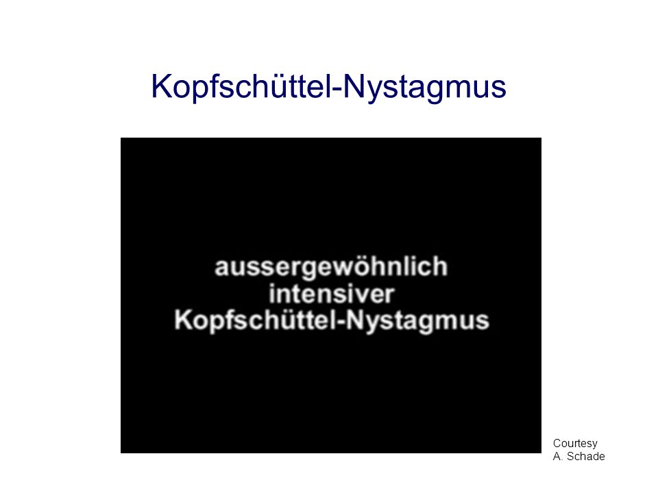 Kopfschüttel-Nystagmus pathologischnormal periphere oder zentrale Vestibulopathie...