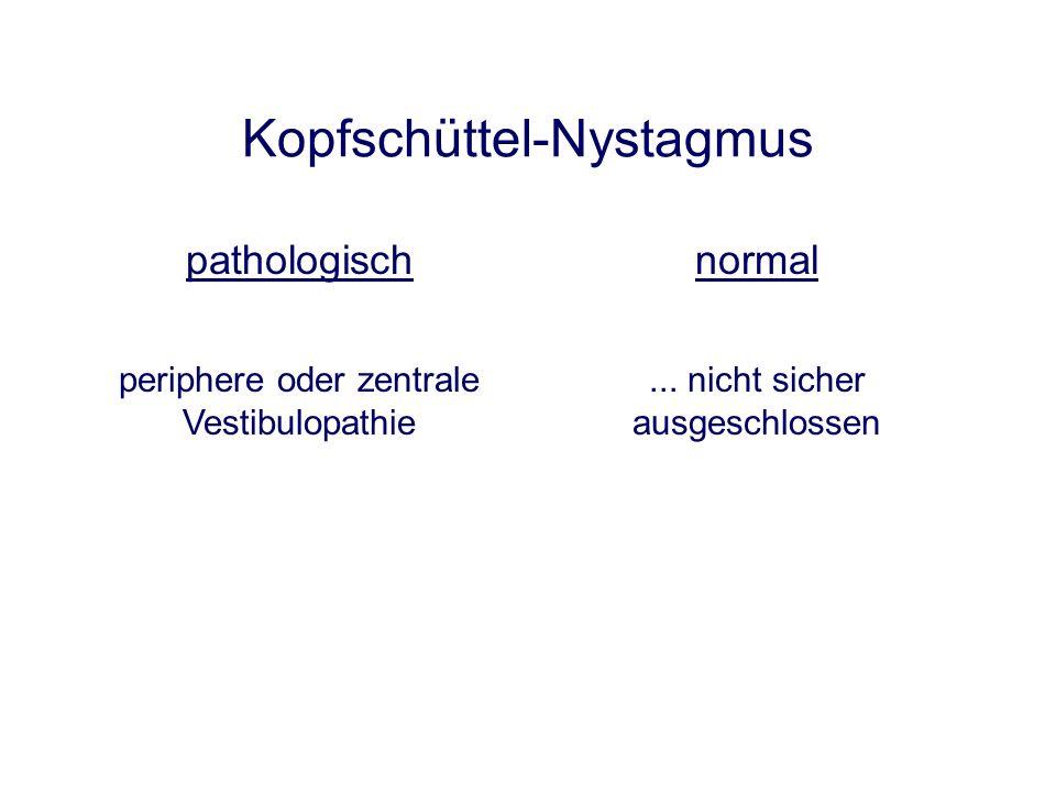 Canalolithiasis