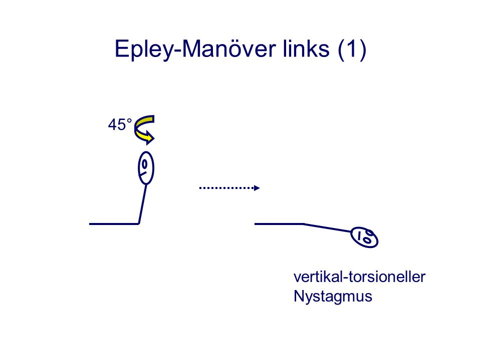 Epley-Manöver links (2) aufsitzen