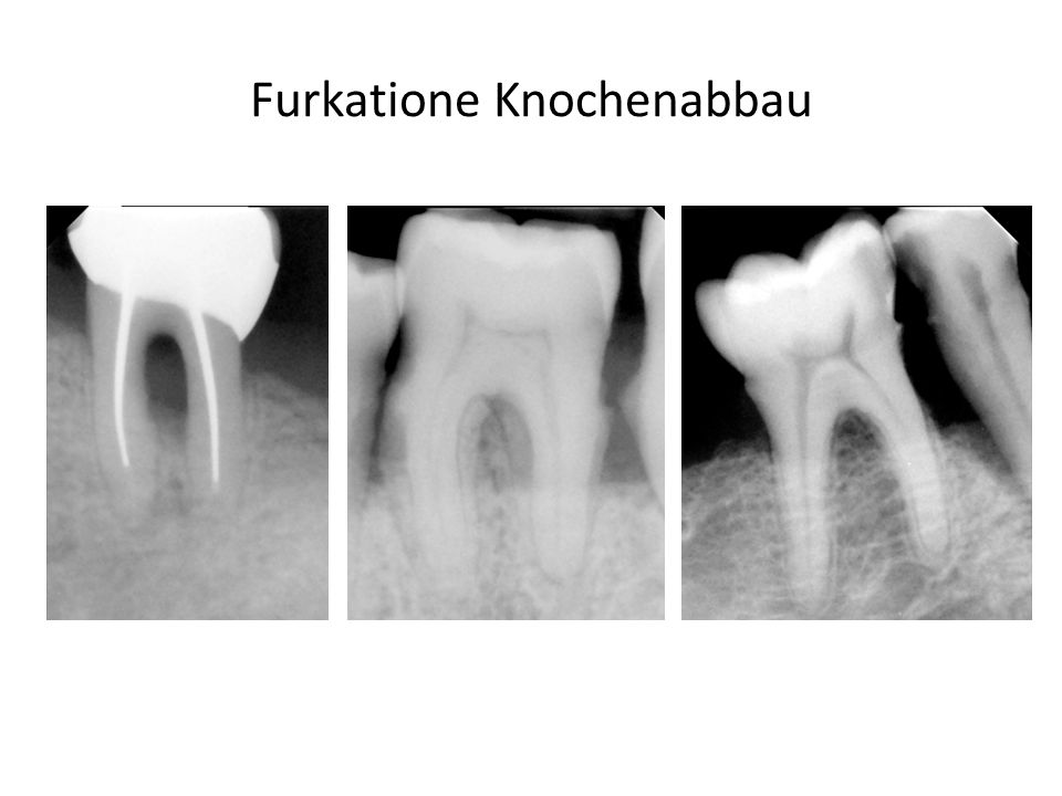 Wurzelresorption