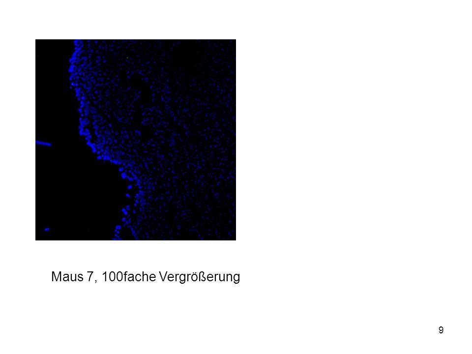 10 Ergebnisse Maus 1 bis 3: deutlich sichtbar Abnahme der FITC-Fluoreszenz in der Blasenwand (Folie 7) Sichtbar am HE der Maus 2: FITC nur in Urothelschicht (Folie 7) Bei Maus 1 konnte geringe FITC-Intensität auch in Muskelschicht detektiert werden (Folie 8) Maus 4 bis 6: ns-siRNA + DOTAP geringere Fluoreszenzintensität als bei Maus 1 bis 3 (ohne Lipidcarrier applizierte Konstrukte)  alle Bilder liegen bei Maus 7: PBS-behandelt  keine FITC-Fluoreszenz detektiert (Folie 9)