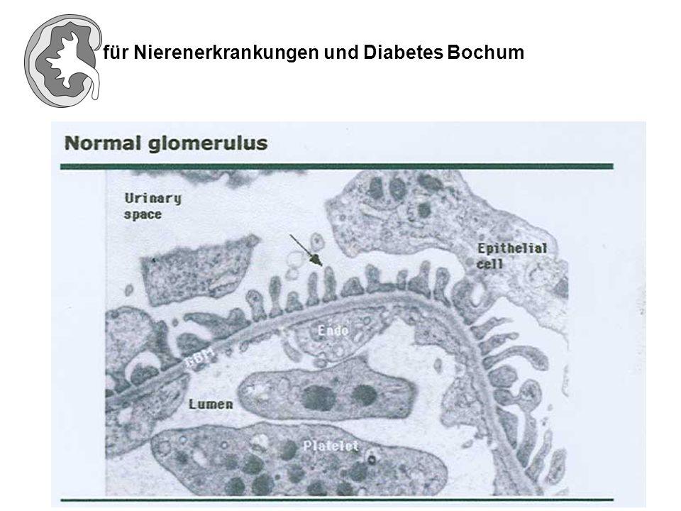 Alport Syndrom Die typische dreischichtige Struktur der Basalmembran ist verdickt und aufgesplittert.