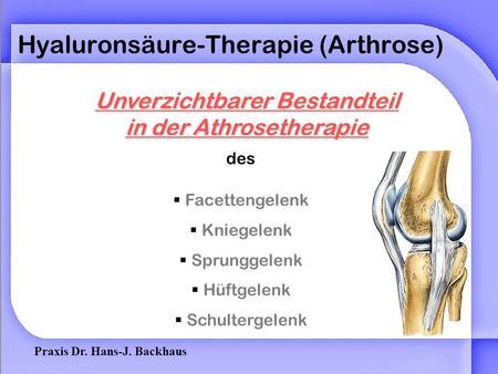 behandlung ac arthrose