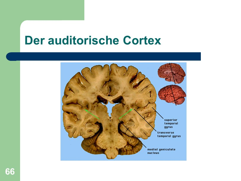 66 Der auditorische Cortex