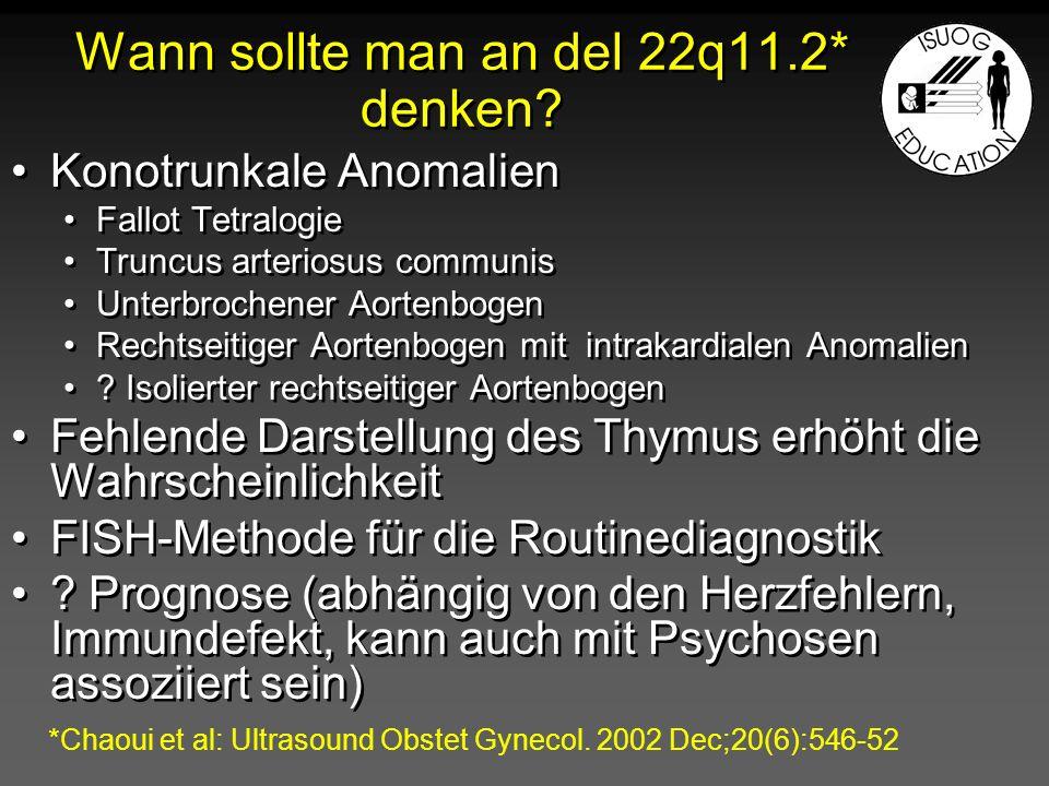 Omphalozele Assoziierte Anomalien Fehlbildungen (CHD) Aneuplopidien Beckwith-Wiedemann