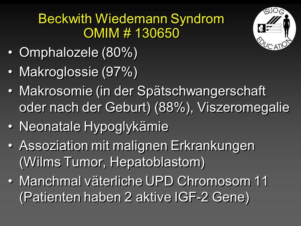Pränatale Diagnose des Beckwith- Wiedemann Syndroms 2 Hauptkriterien* Omphalozele Makroglossie Makrosomie 1 Haupt- plus 2 Nebenkriterien* Nephromegalie/renale Dysgenesie Aneuploidy/abnormal loci (Duplikationen/Deletionen 11p,11p15-Disomie) Polyhydramnion Mesenchymale Dysplasie der Plazenta (in 50% der Fälle)** 2 Hauptkriterien* Omphalozele Makroglossie Makrosomie 1 Haupt- plus 2 Nebenkriterien* Nephromegalie/renale Dysgenesie Aneuploidy/abnormal loci (Duplikationen/Deletionen 11p,11p15-Disomie) Polyhydramnion Mesenchymale Dysplasie der Plazenta (in 50% der Fälle)** * Williams DH et al: Prenat Diagn.