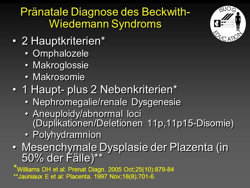 Beckwith-Wiedemann Syndrom Omphalozele mit DarmMakroglossie > 28 SSW