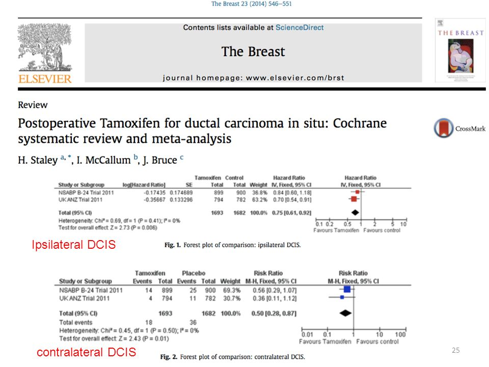 C Ipsilateral DCIS contralateral DCIS