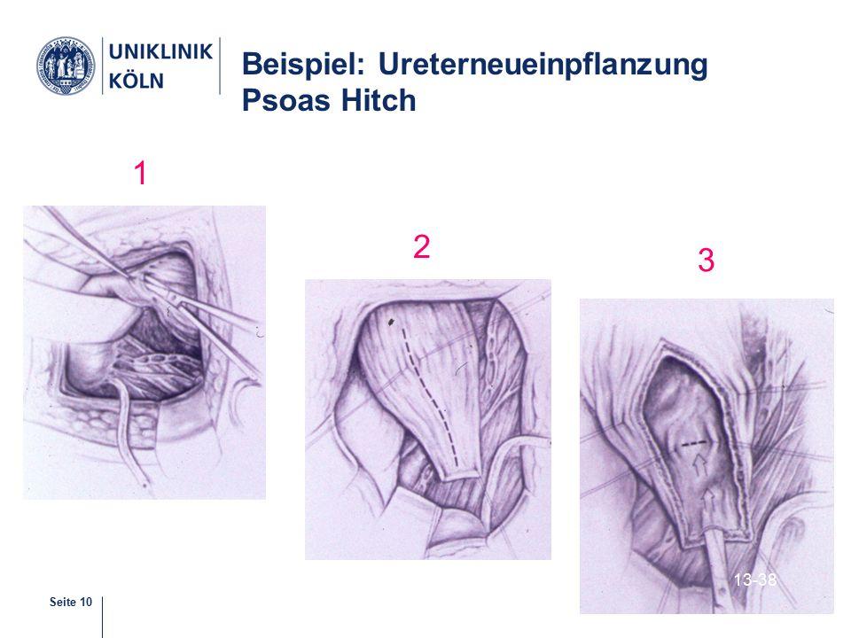 Beispiel: Ureterneueinpflanzung Psoas Hitch