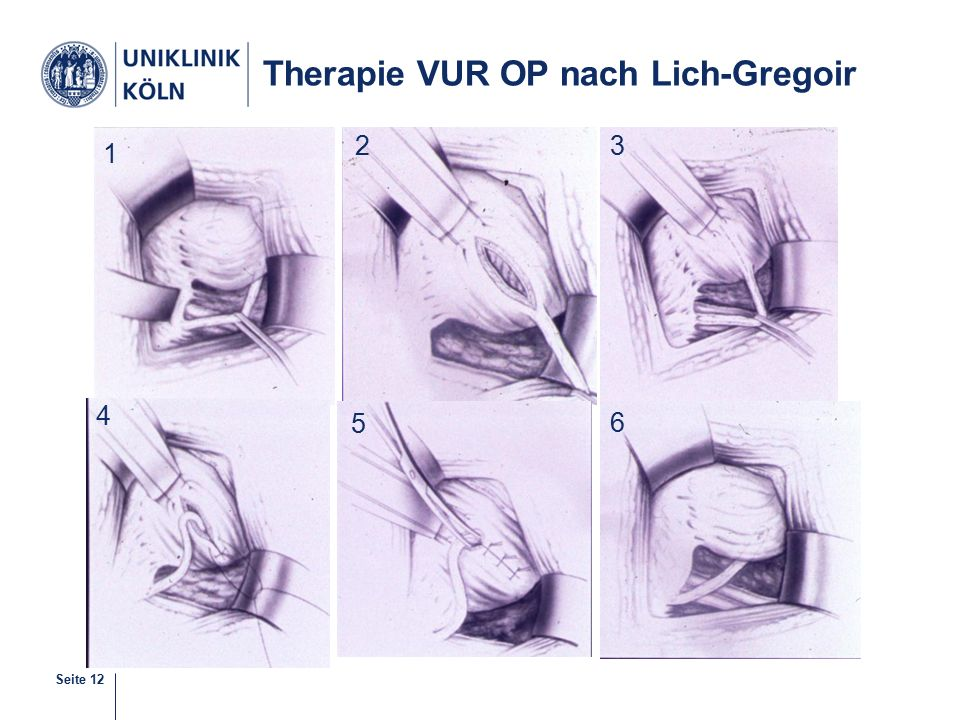 Therapie VUR OP nach Lich-Gregoir