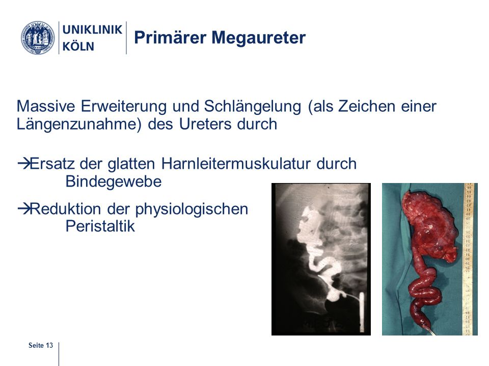 Primärer Megaureter Massive Erweiterung und Schlängelung (als Zeichen einer Längenzunahme) des Ureters durch.