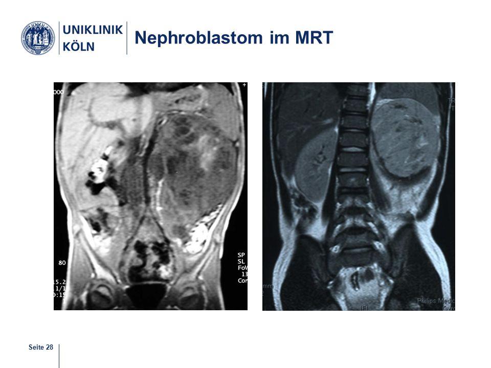 Nephroblastom im MRT
