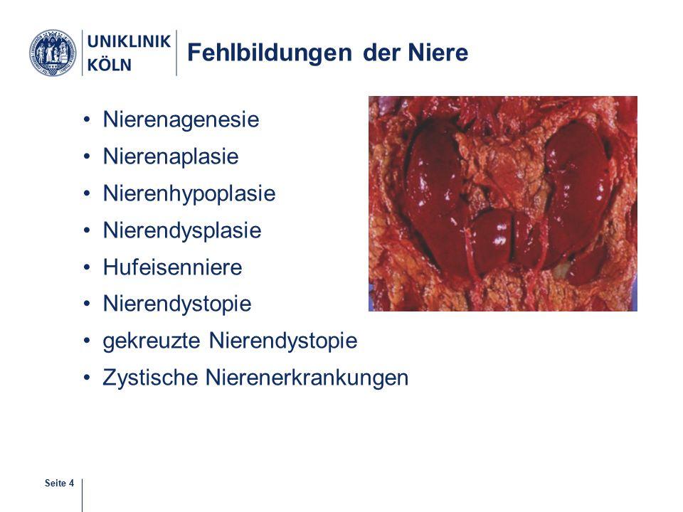 Fehlbildungen der Niere