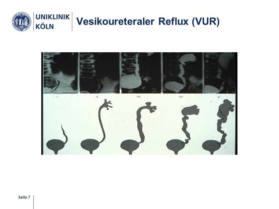 Vesikoureteraler Reflux (VUR)