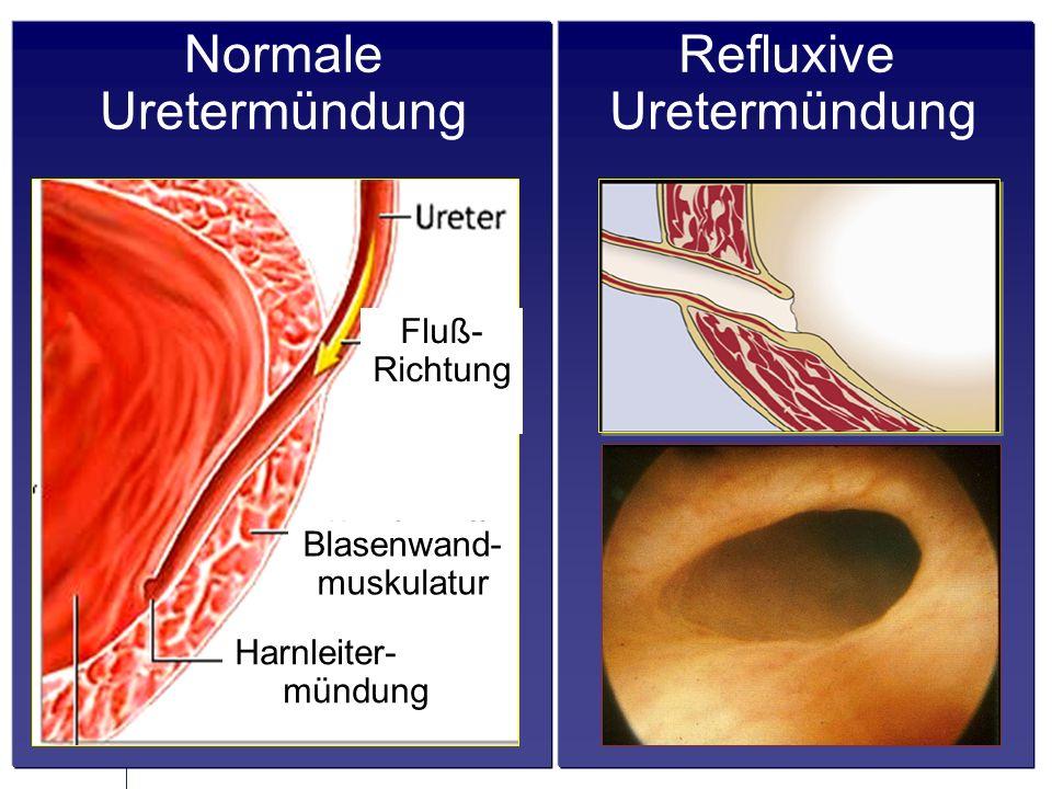 Normale Uretermündung Refluxive Uretermündung Fluß- Richtung