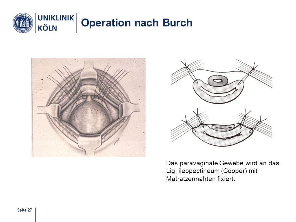 Operation nach Burch Das paravaginale Gewebe wird an das Lig. ileopectineum (Cooper) mit Matratzennähten fixiert.