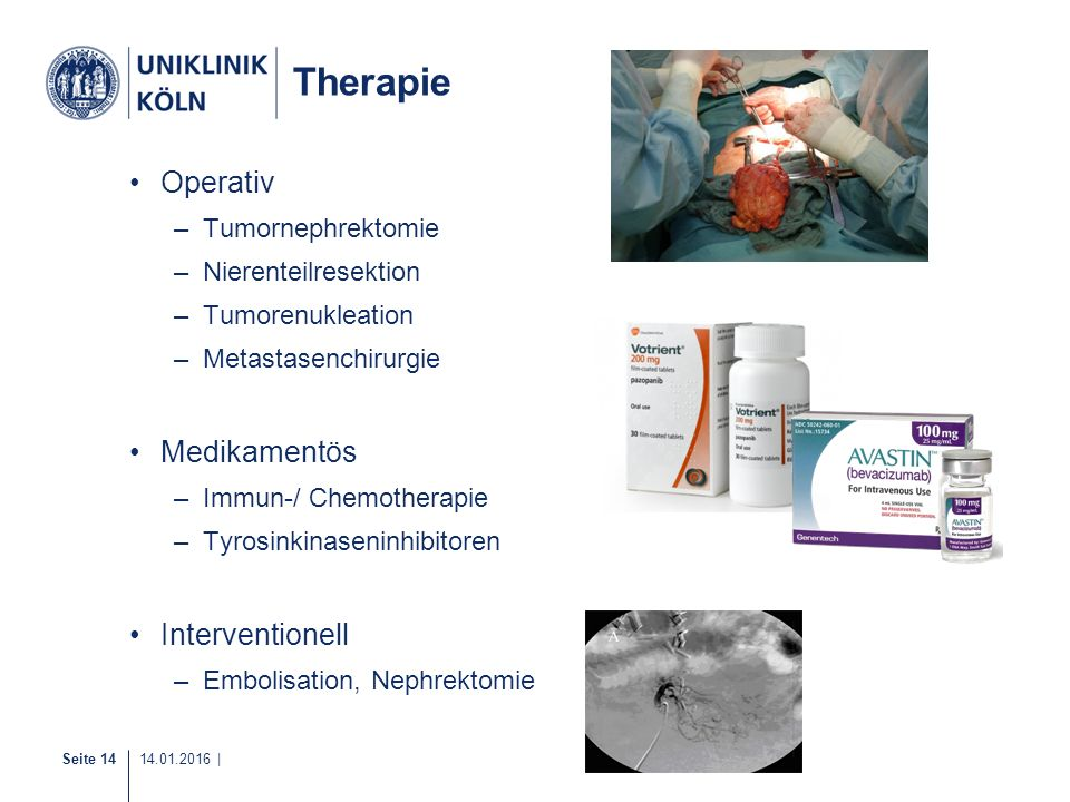 Therapie Operativ Medikamentös Interventionell Tumornephrektomie