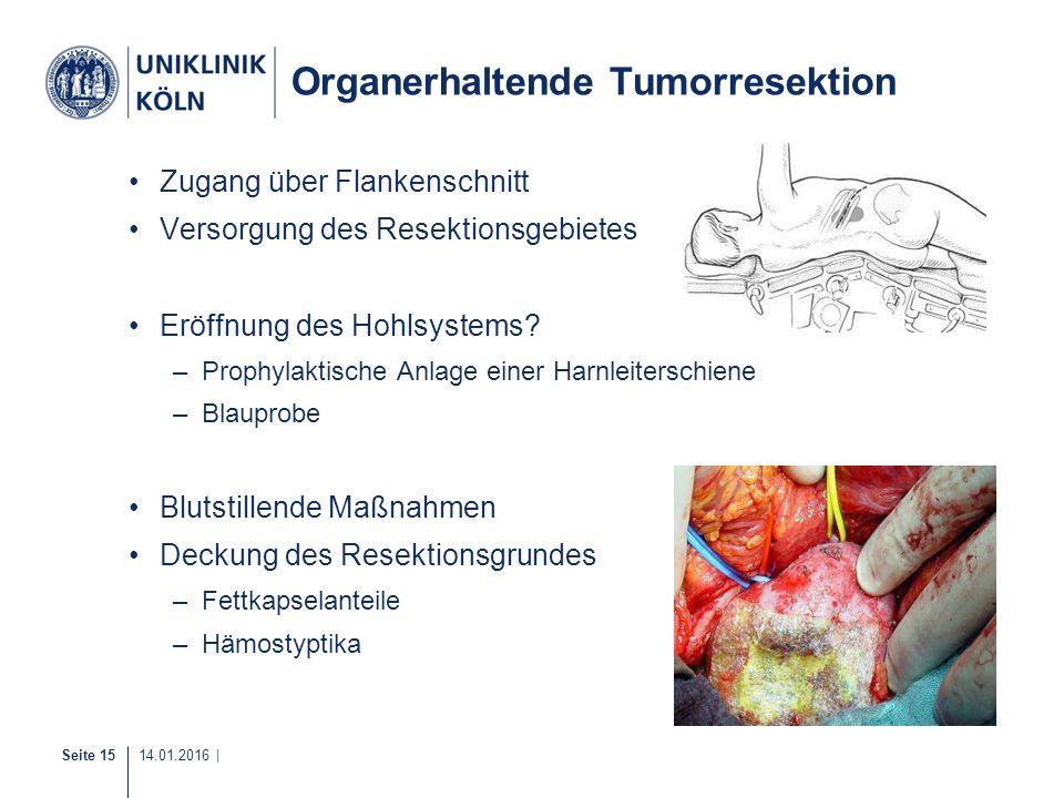 Organerhaltende Tumorresektion