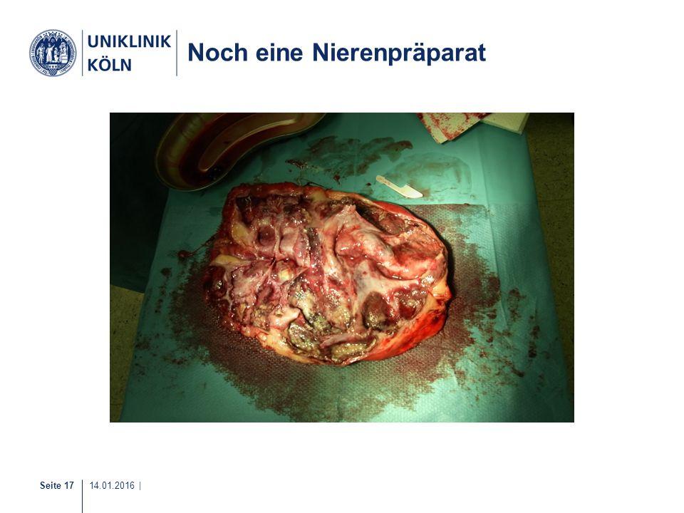 Noch eine Nierenpräparat