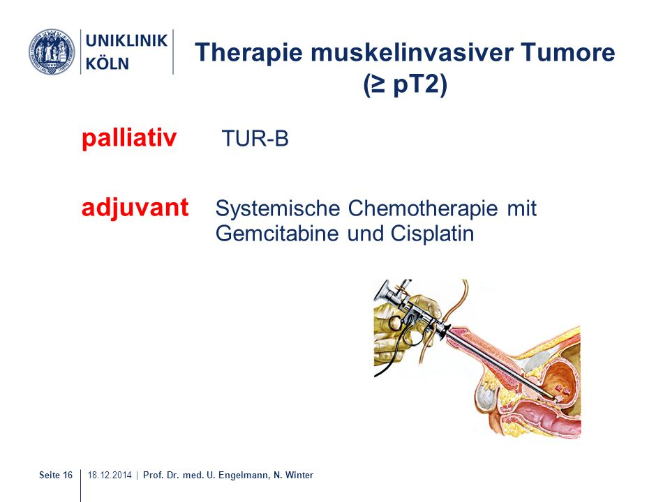 Therapie muskelinvasiver Tumore (≥ pT2)
