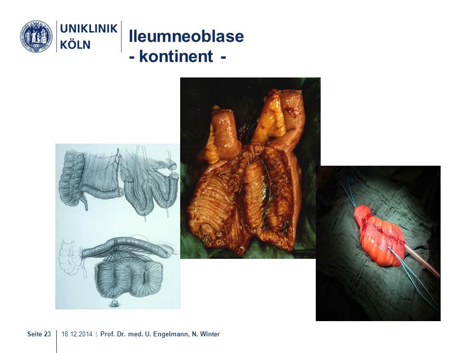 Ileumneoblase - kontinent -
