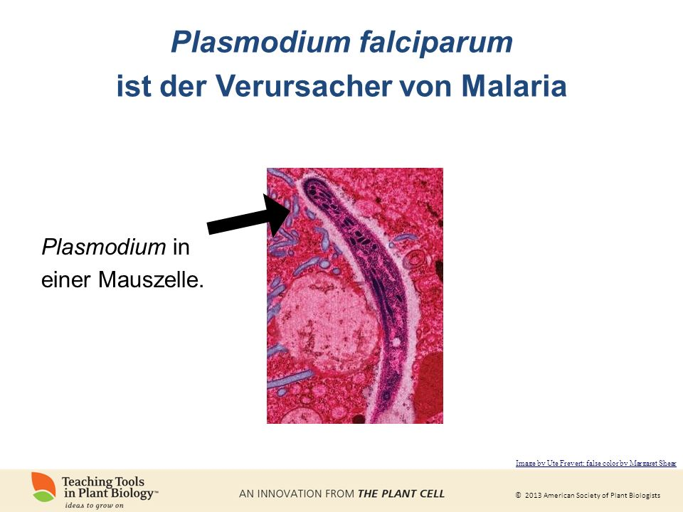 Plasmodium falciparum ist der Verursacher von Malaria