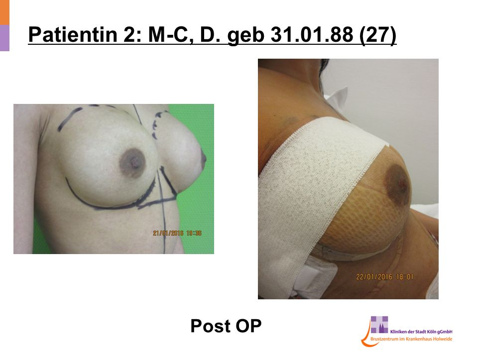Patientin 2: M-C, D. geb (27) Post OP