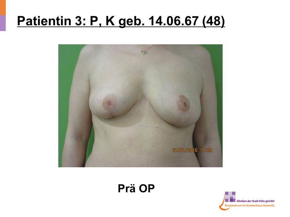 Patientin 3: P, K geb. 14.06.67 (48) Prä OP