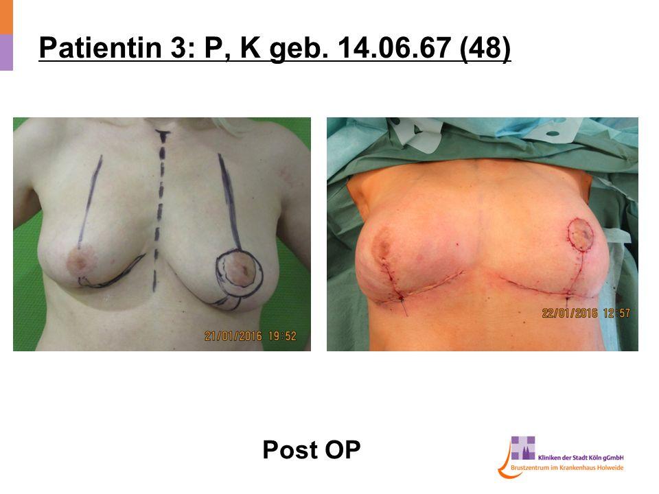 Patientin 3: P, K geb. 14.06.67 (48) Post OP