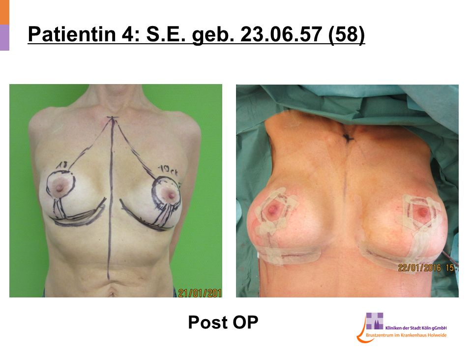 Patientin 4: S.E. geb (58) Post OP