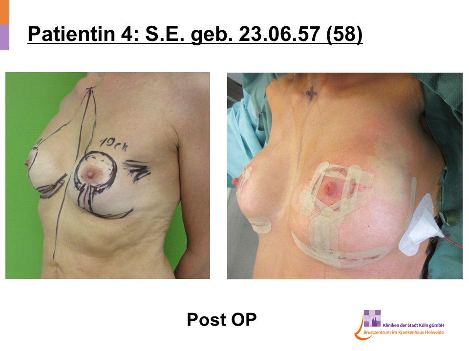 Patientin 4: S.E. geb. 23.06.57 (58) Post OP