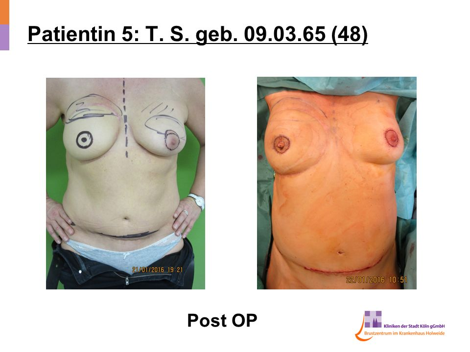 Patientin 5: T. S. geb (48) Post OP