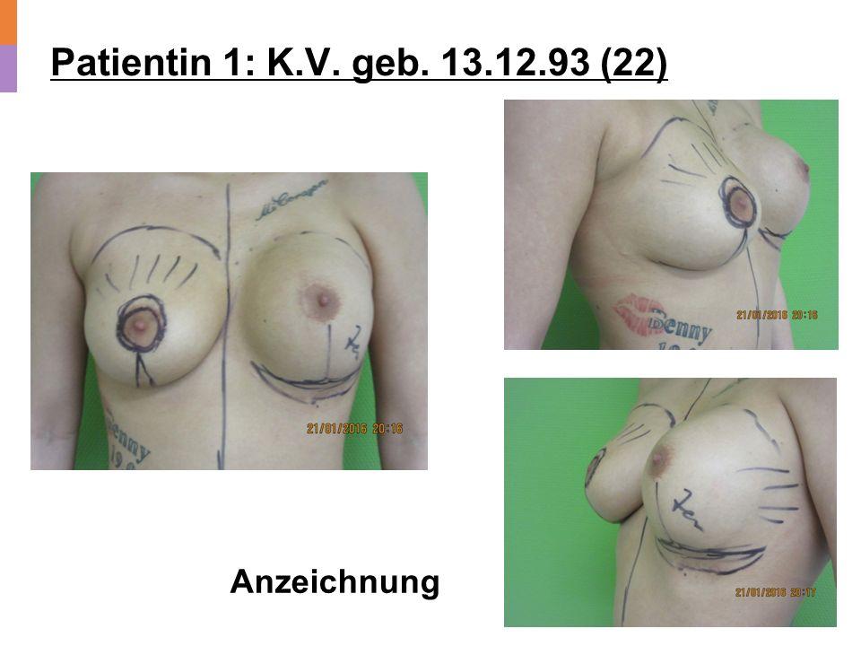 Patientin 1: K.V. geb. 13.12.93 (22) Anzeichnung