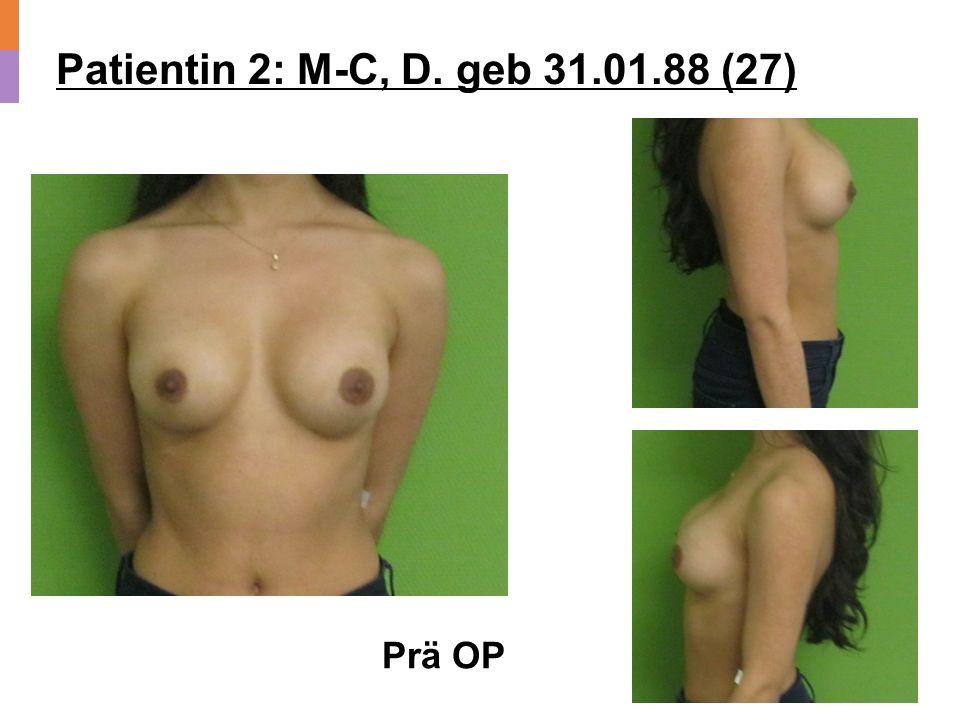 Patientin 2: M-C, D. geb 31.01.88 (27) Prä OP