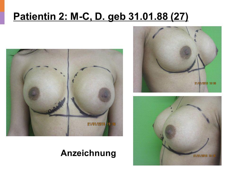 Patientin 2: M-C, D. geb 31.01.88 (27) Anzeichnung