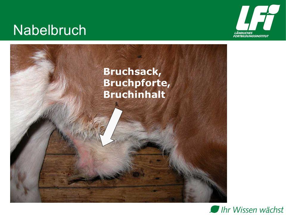 Nabelbruch Bruchsack, Bruchpforte, Bruchinhalt