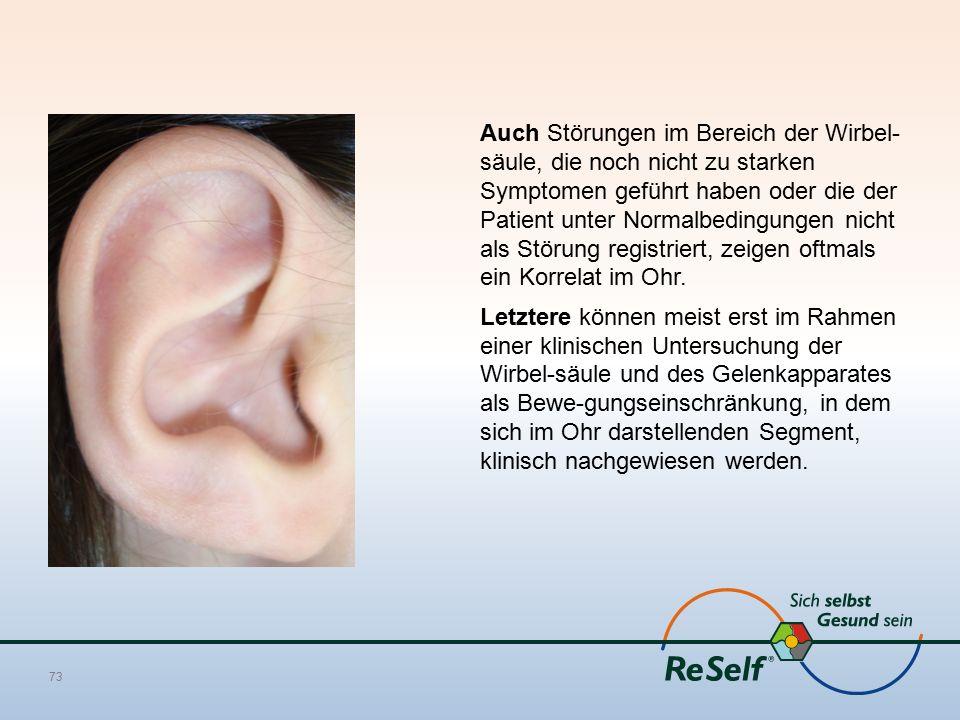 Auch Störungen im Bereich der Wirbel- säule, die noch nicht zu starken Symptomen geführt haben oder die der Patient unter Normalbedingungen nicht als Störung registriert, zeigen oftmals ein Korrelat im Ohr.