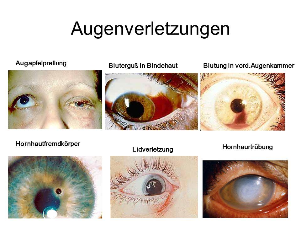 Augenverletzungen Augapfelprellung Bluterguß in Bindehaut