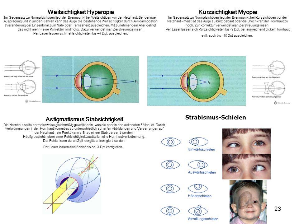Weitsichtigkeit Hyperopie Kurzsichtigkeit Myopie
