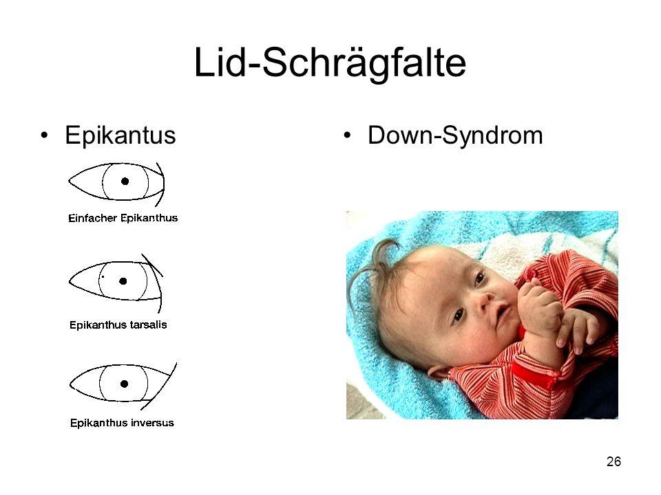 Lid-Schrägfalte Epikantus Down-Syndrom