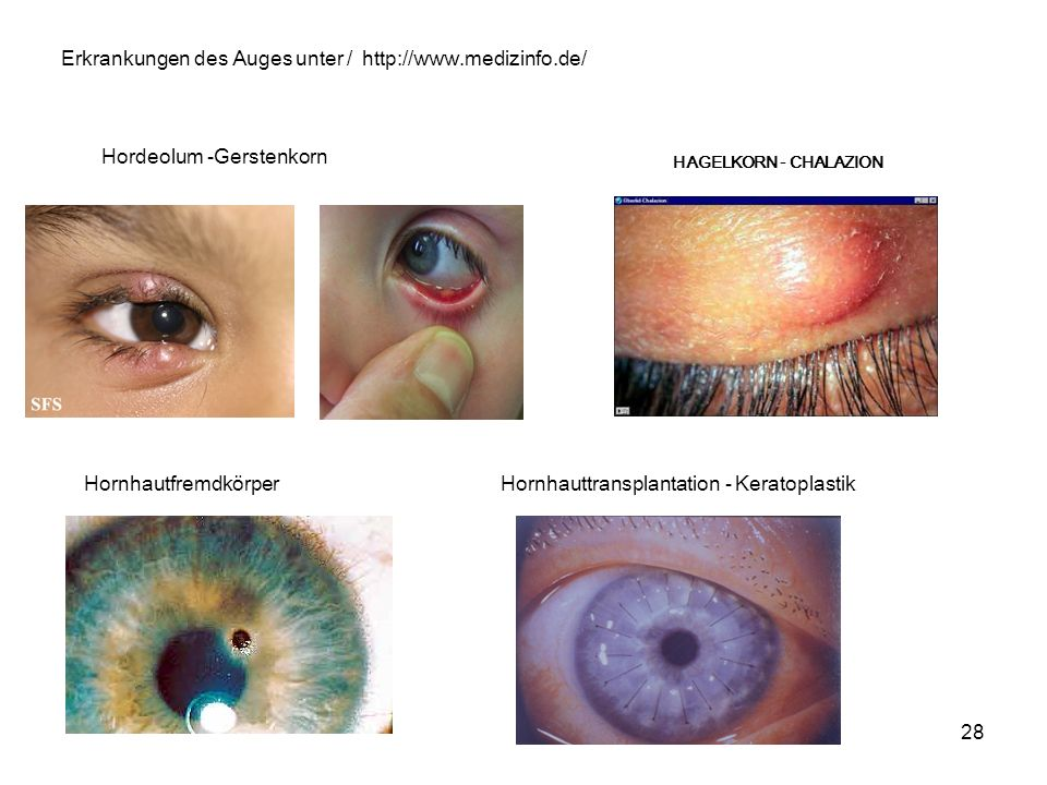 Erkrankungen des Auges unter / http://www.medizinfo.de/