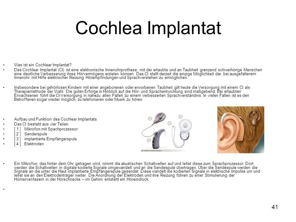Cochlea Implantat Was ist ein Cochlear Implantat