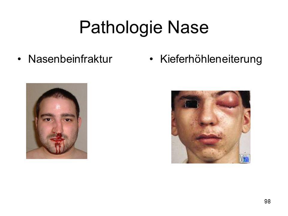 Pathologie Nase Nasenbeinfraktur Kieferhöhleneiterung